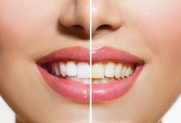 Wilmington MA Dentist | Stained Teeth